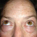 Before - Upper and Lower Eyelids