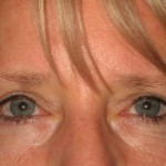 After - Upper Eyelids