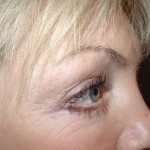 After- Lower Eyelids, Transcutaneous Approach