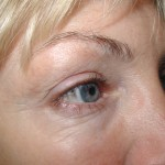 Before - Lower Eyelids, Transcutaneous Approach