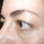 Before - Upper Eyelids