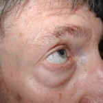 Before - Lower Eyelids, Transconjunctival Approach