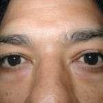 Before - Lower Eyelids