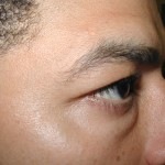 Before - Lower Eyelids
