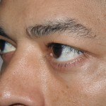 After - Lower Eyelids