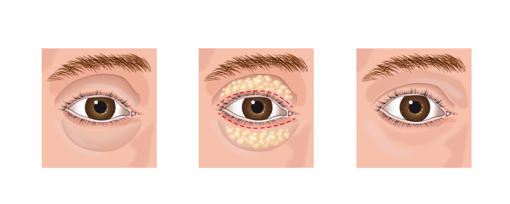 aesthetic blepharoplasty eye