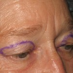 Before - Upper Eyelids