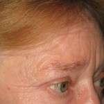 After - Upper Eyelids