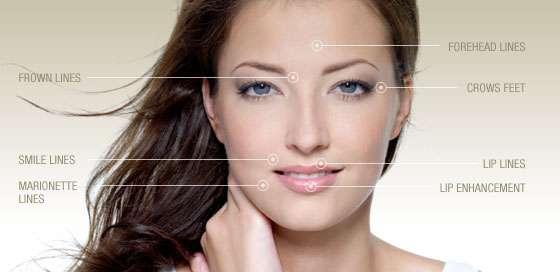 wrinkles-aging