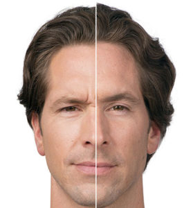 Learn More About Botox for Men